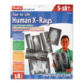 Tru-to-Life Human X-Rays from Montessori Services